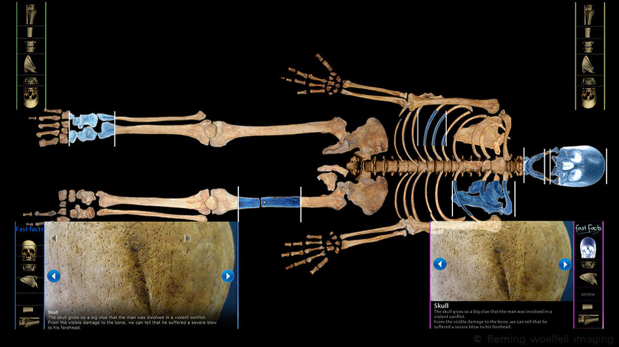 14th C Stirling skeleton multimedia